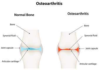 Osteoarthritis Synovial Joint