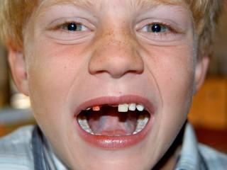 Junge mit Zahnlücke
