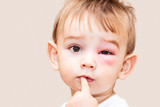 Boy - Dangerous Stings From Wasps Near The Eye - Isolated Image