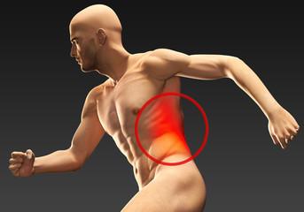 Uomo con dolore addominale laterale
