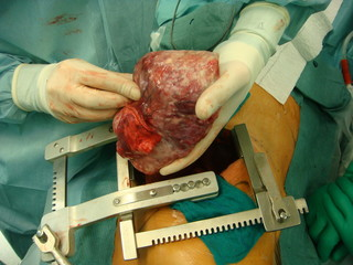 Solitary Fibrous Tumor
