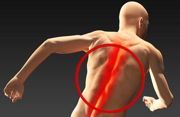 Uomo con dolore alla spina dorsale