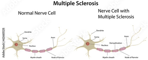 Multiple Sclerosis Labeled Diagram