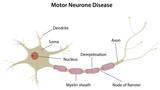 Motor Neurone Disease poster