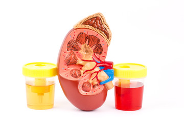 Kidney, normal urine and bloody urine