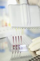 Deutschland, München, Wissenschaftler erforscht Blut im Labor