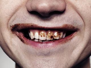 Junger Mann Zähne mit Schokolade