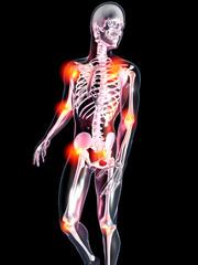 Anatomie - Gelenkschmerzen
