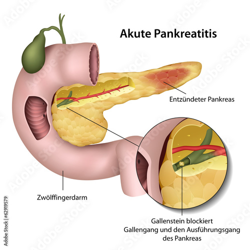 Akute Pankretitis, Medical Illustration