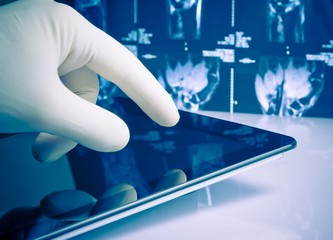 hand in glove touching modern digital tablet on x-ray images