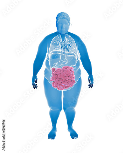 Overweight Female with hihglighted Small intestine