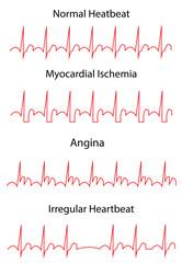 EKG Angina