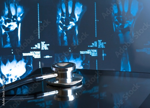 stethoscope on digital tablet pc in laboratory on x-ray images