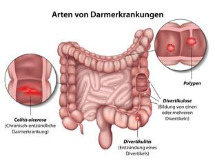 Arten von Darmerkrankungen