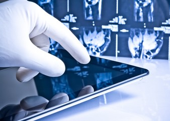 hand touching modern digital tablet on x-ray images