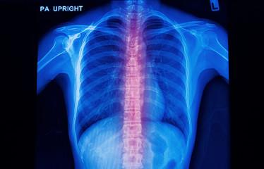 x-ray image of human spinal column  show backl pain
