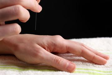 Acupuncture on hand, close up, on dark background