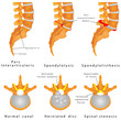 Spine Fracture. Spondylolysis (Spondylolisthesis)