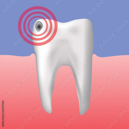 hole in the tooth