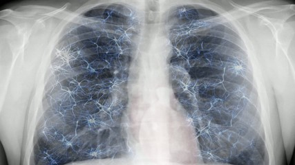 Chest x-ray - nervous system.