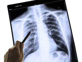 X-Ray Image Of Human Chest for a medical diagnosis and hand poin