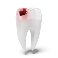 Aching tooth