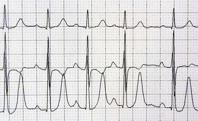 Heart analysis, electrocardiogram graph