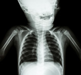 X-ray skull and chest of child poster