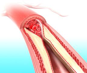 Anatomy of Atherosclerosis
