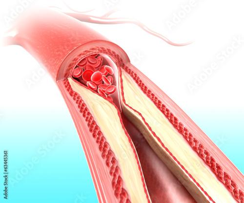 Anatomy of Atherosclerosis - 63445361