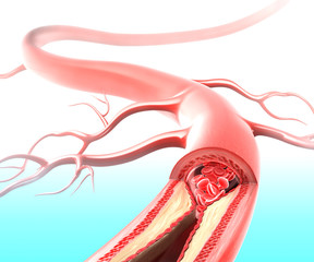 Anatomy of Atherosclerosis plaque