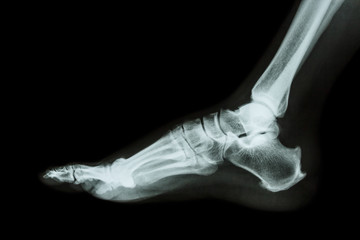 X-ray normal foot lateral