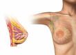 Leinwandbild Motiv Woman breast cutaway diagram.