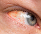 Chronic conjunctivitis eye with a red iris and pus close-up. poster