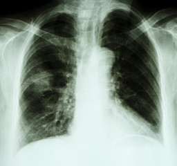 X-ray chest of lung cancer patient
