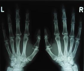 Röntgenbild Hände2