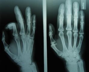 Röntgenbild Hände3