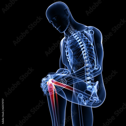 Anatomy of male knee pain in black