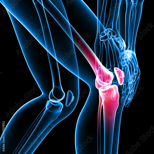 Anatomy of knee pain on black