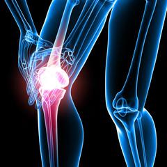 Human knee pain anatomy on black