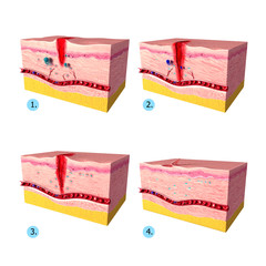 Anatomy of  tissue repair in human skin