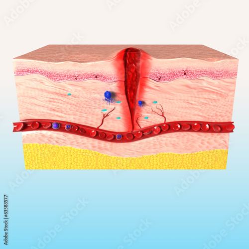 3d Anatomy of  tissue repair in human skin