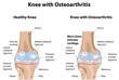 Knee Joint with Osteoarthritis Diagram