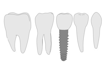 cartoon image of tooth implant
