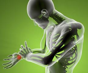 Polso mano braccio dolore radiografia