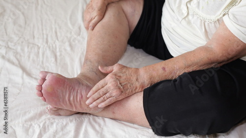 Senior woman applying cream on her foot.