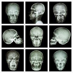 Collection of asian skull