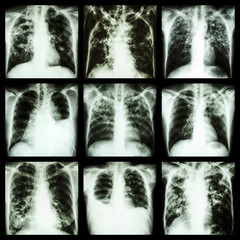 Collection of lung disease