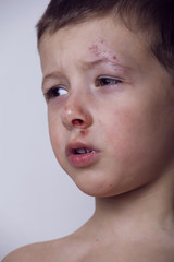 Little boy with wounded face, cockerel after fight close up