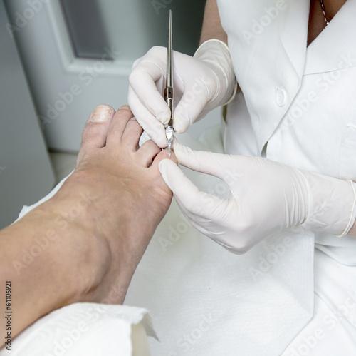 Pedicure treatment